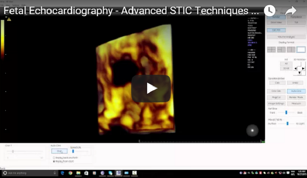 Fetal Echocardiography - Advanced STIC Techniques - Tricuspid Valve Assessment (Tristar Sign)