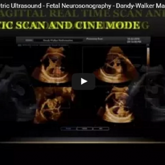 4D Ultrasound - Obstetric Ultrasound - Fetal Neurosonography - Dandy-Walker Malformation (DWM)